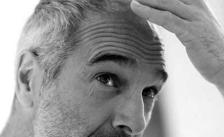 Stopper la chute des cheveux à Marseille - Dr Germain