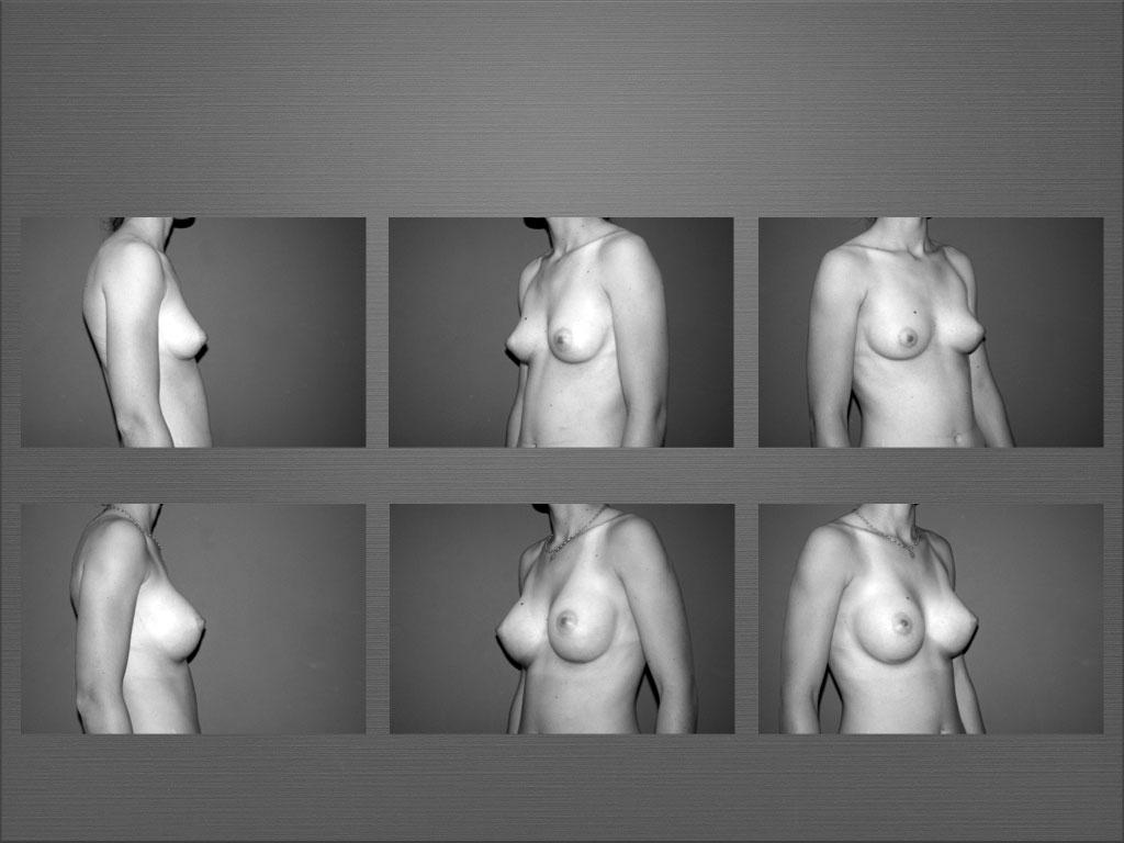 Augmentation mammaire à Marseille - Dr Frédéric Germain