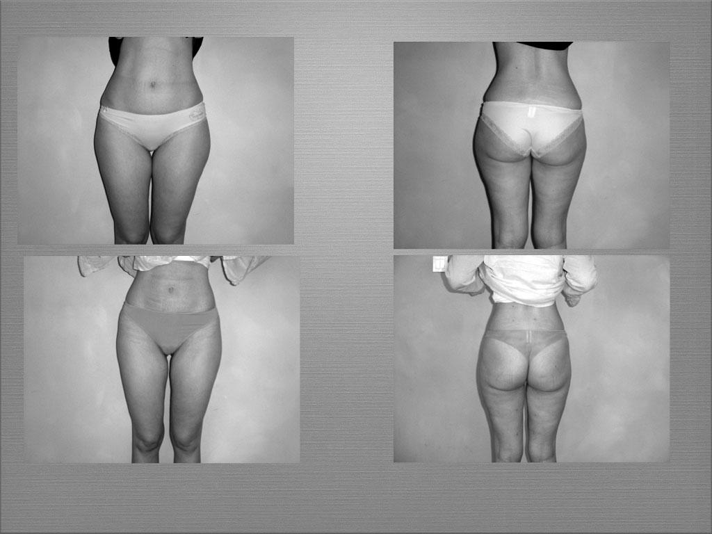 Chirurgie esthétique de la silhouette à Marseille - Dr Frédéric Germain