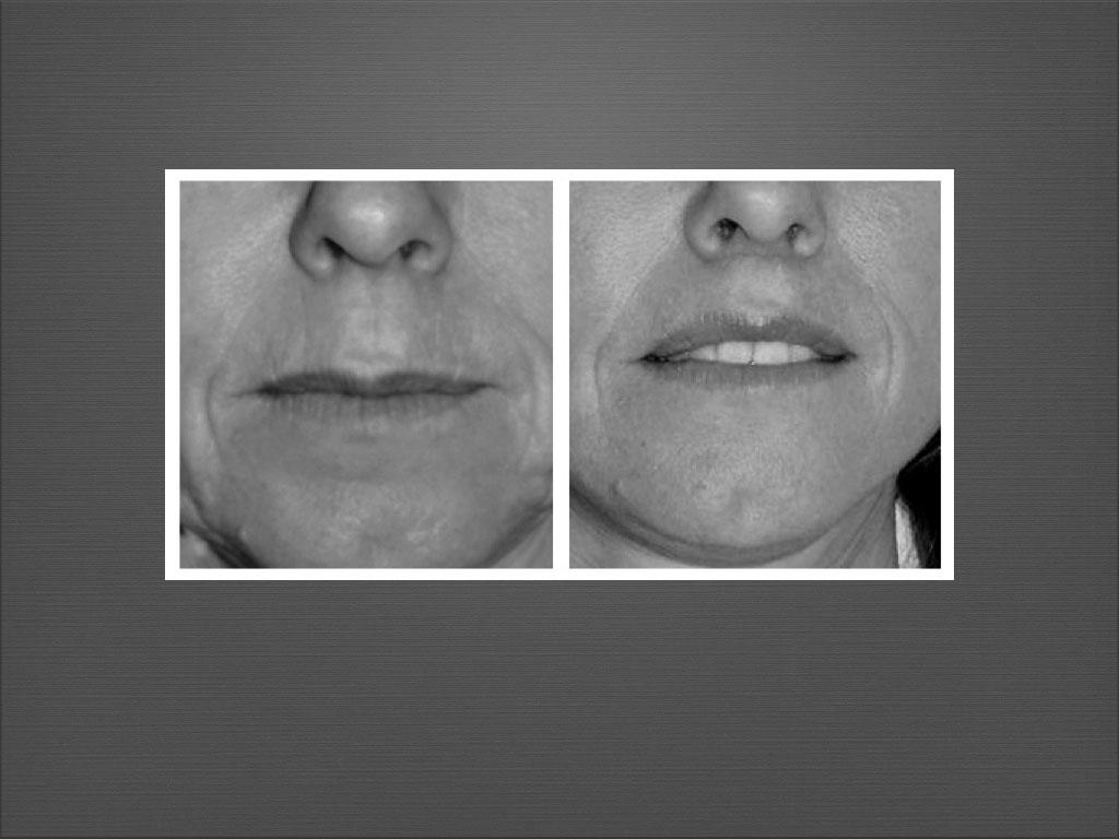 Chirurgie esthétique du visage à Marseille - Dr Frédéric Germain