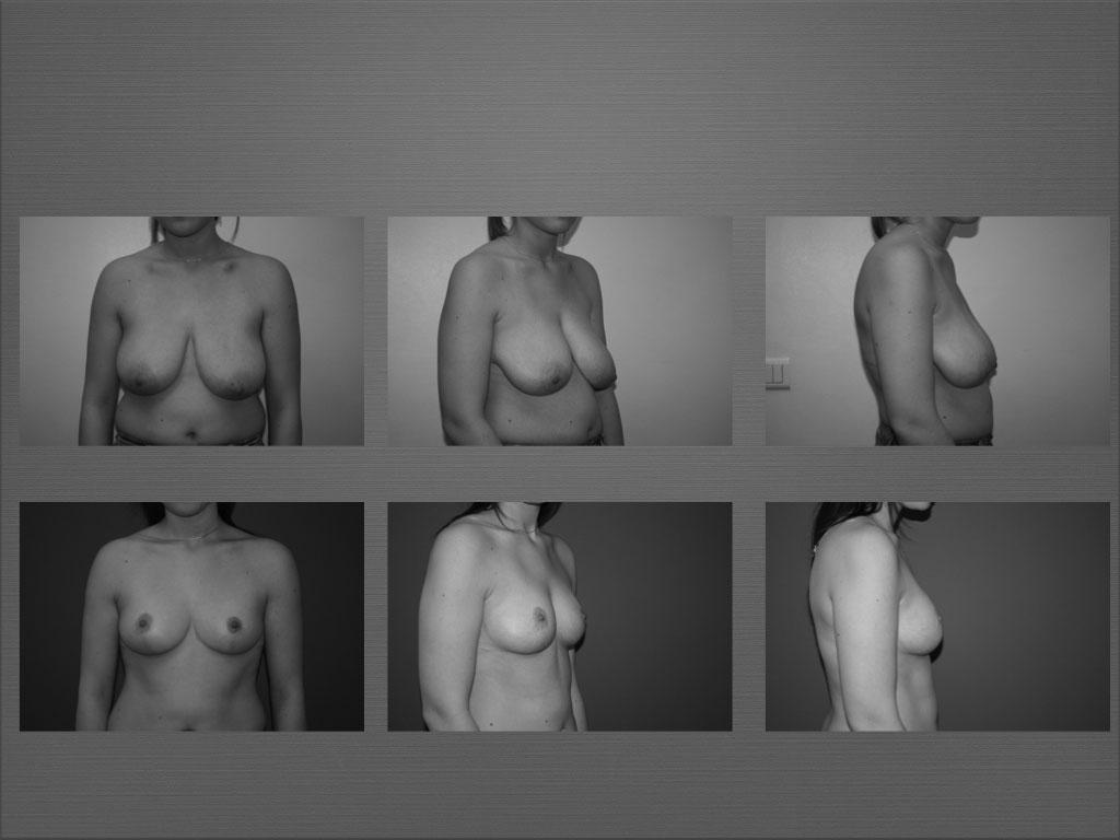 Réduction mammaire à Marseille - Dr Frédéric Germain
